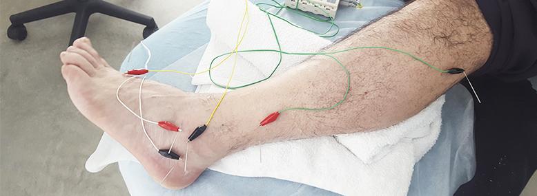 ¿Conoces la neuromodulación?